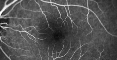 Pigmented Macular Lesion