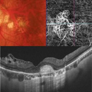 OCT & OCTA in myopic CNVM
