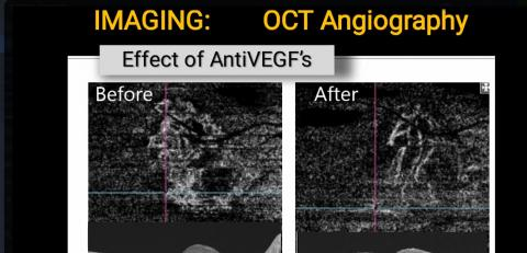 OCTA:  Effect of AntiVEGFs on CNVM