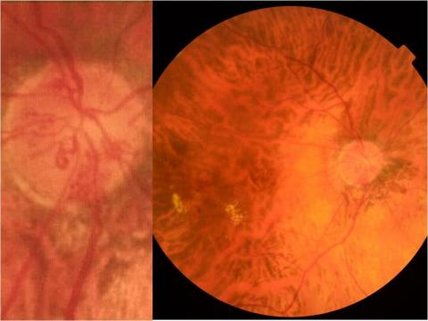 Bilateral retinal diseases sometimes have different etiologies