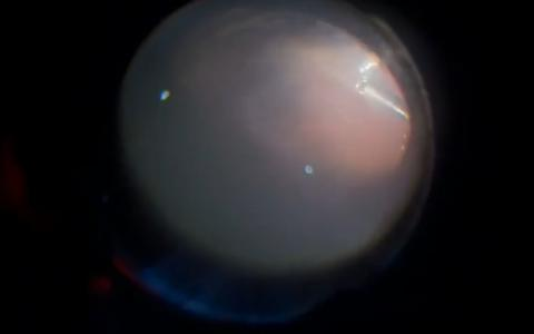 Vitrectomy for RD in corneal opacity