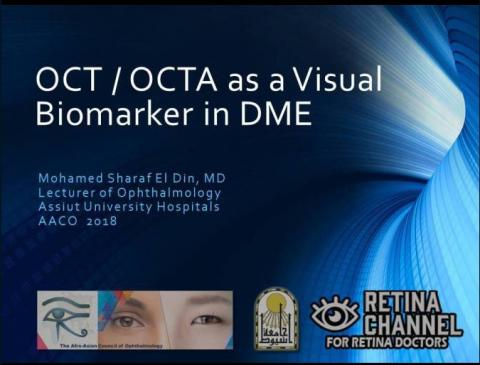 OCT as a Visual Biomarker in DME