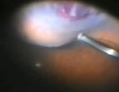 RD WITH vitreous hge and multiple tears