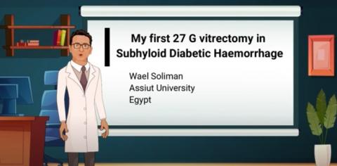 My First 27 G Vitrectomy in Subhyaloid Diabetic Haemorrhage