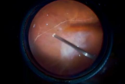 unimaual vitrectomy for PDR