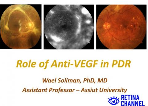 Anti-VEGF in PDR
