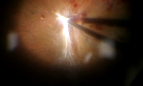 Dense Sub hyloid hge with TRD using 23g Vitrectomy