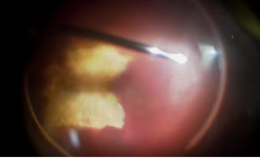 TRactional Retinal Detachment with dense sub hyloid hge