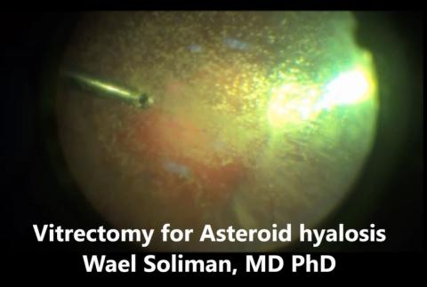 Vitrectomy for Asteroid hyalosis