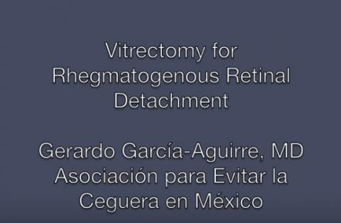 Surgery for Rhegmatogenous Retinal Detachment (Vitrectomy).