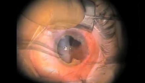 Traumatic Iris Tear and IOFB