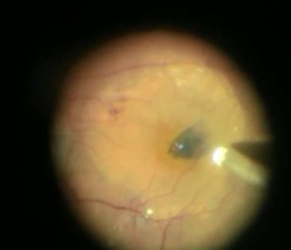 Inverted falp technique for large macular hole