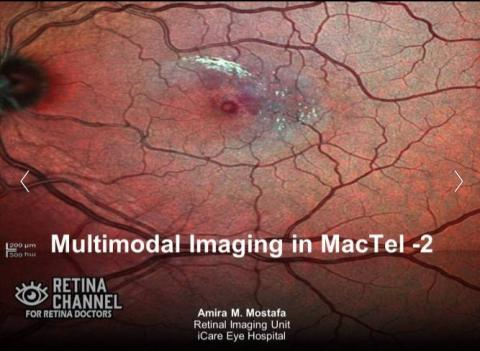 Multimodal Imaging in MacTel type-2
