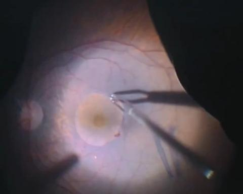 Management of vitreomacular traction using 25g vitrectomy