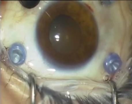 Vitrectomy for advanced diabetic tractional RD.