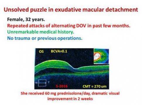 unsolved puzzle in exudative macular detachment - Zeiad H. Eldaly 2